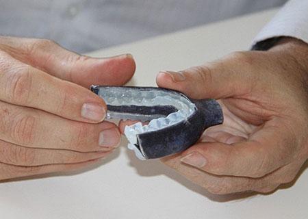 3D打印再显奇能 用牙垫治疗睡眠呼吸暂停